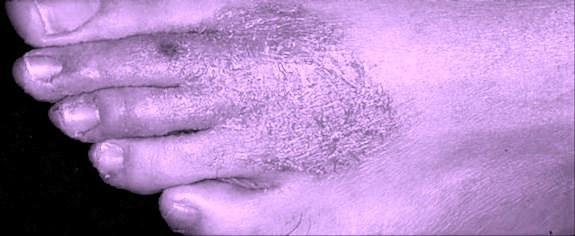 eczemas.jpg